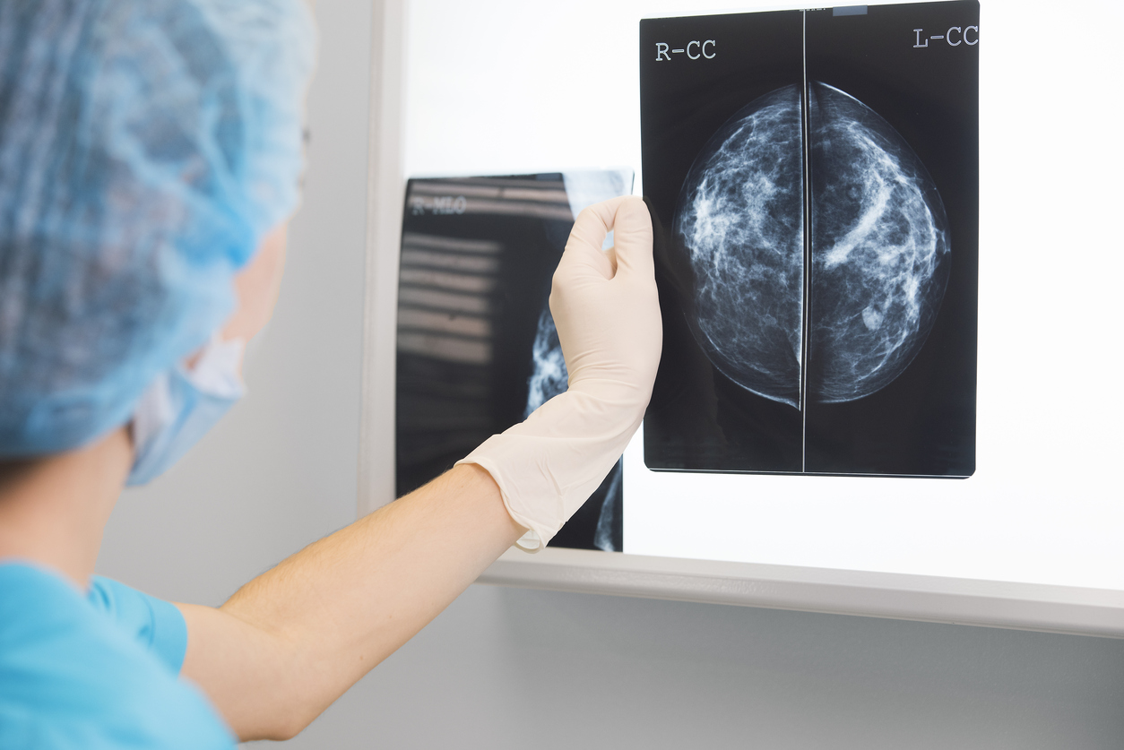Women offered NHS breast screening after missed invitations
